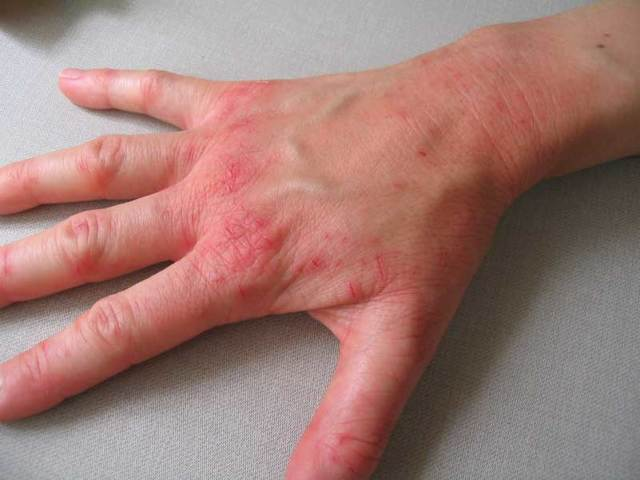 У ребенка дерматит на руках что делать
