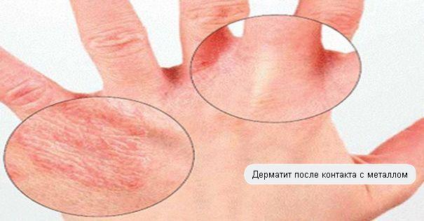Что такое контактный дерматит и как его лечить?