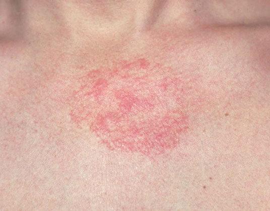Овес при атопическом дерматите у детей