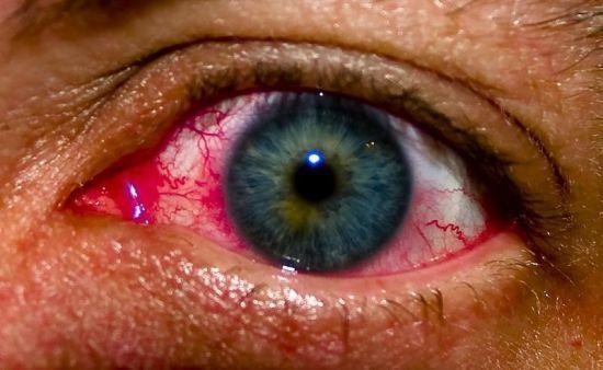Аллергический дерматит на коже вокруг глаз
