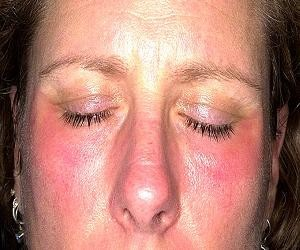 Атопический дерматит у грудничка комаровский при гв комаровский