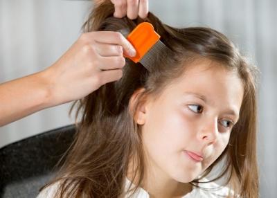 Себорейный дерматит волосистой части головы у ребенка 5 лет