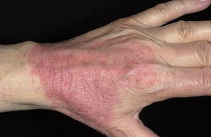 Как долго лечится аллергический дерматит у взрослых по всему телу?