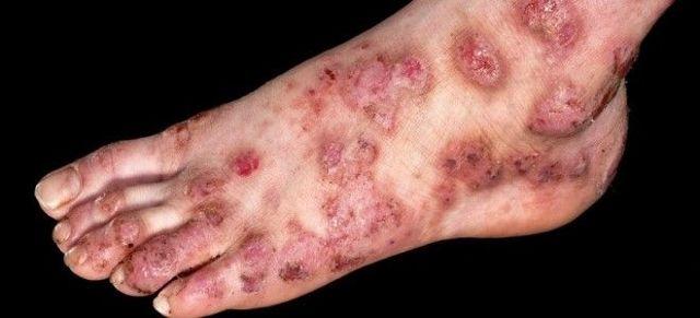 Пузырчатый дерматит и его злокачественная форма дерматит эксфолиативный