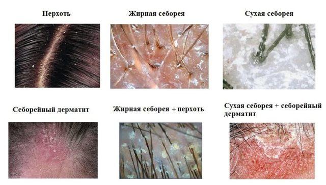 Ванна из череды при атопическом дерматите