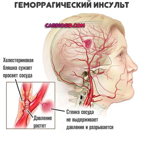 Что делать если повышенное нижнее давление и болит голова?