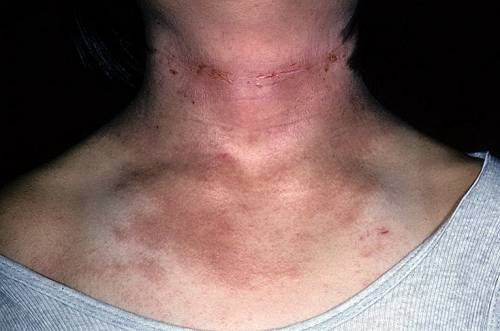 Чем лечить дерматит на шее у взрослого