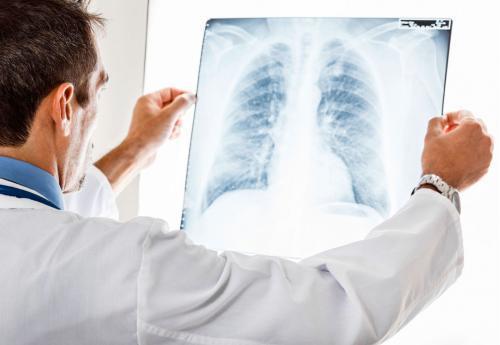 Раздражающий сухой кашель чем лечить