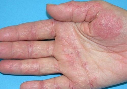 Что можно есть при аллергическом дерматите взрослому?
