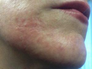 Передается ли атопический дерматит от матери к ребенку