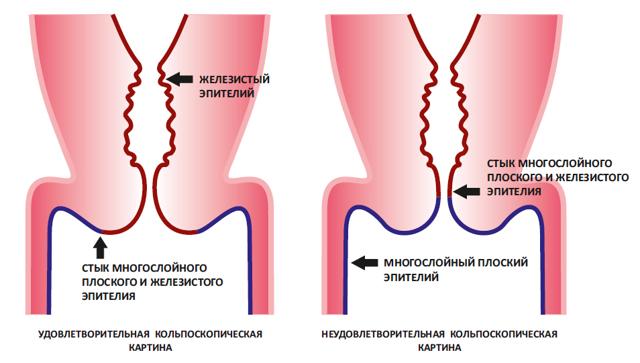 Причинно-следственная связь проявления дисплазии