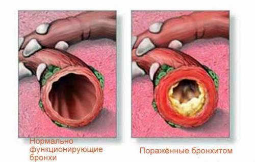 Лекарство от кашля мокрого взрослым