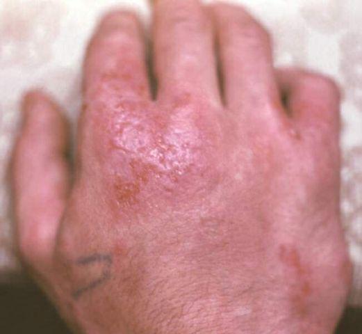 Как вылечить аллергический дерматит раз и навсегда?