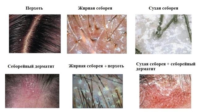 Чем лечить себорейный дерматит на голове у взрослого шампуни
