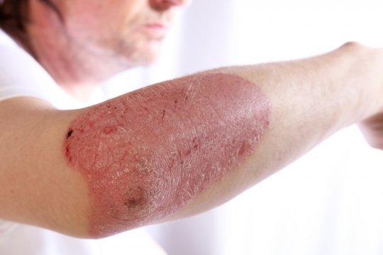 Атопический дерматит и псориаз это одно и тоже