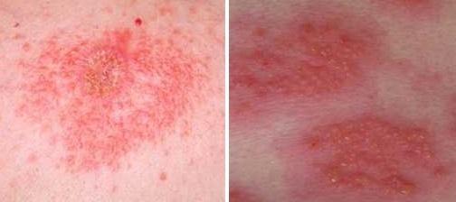 Откуда берется дерматит и как его лечить