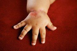 Аллергический дерматит у детей через сколько проходит