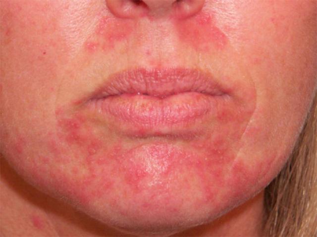 Чем отличается розацеа от себорейного дерматита