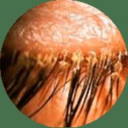 Можно ли делать татуаж при себорейном дерматите?