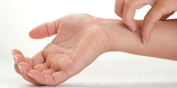 Аллергический дерматит на руках симптомы и лечение у взрослых
