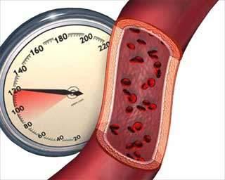 Повышенное атмосферное давление влияние на человека с низким давлением