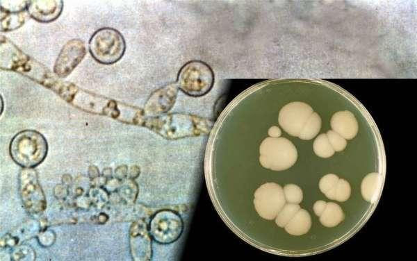 Атопический дерматит у ребенка на половых органах