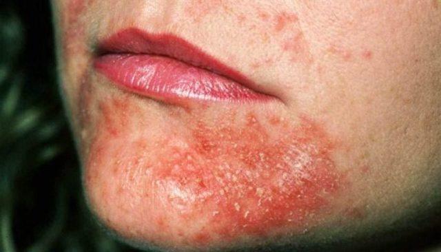 Мокнутие при атопическом дерматите лечение у ребенка
