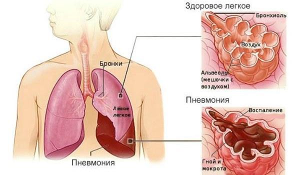 Тяжесть в груди и кашель