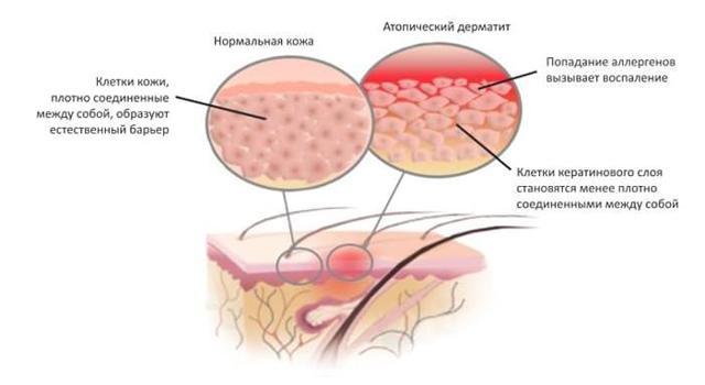 Атопический дерматит с распространенной лихенификацией кожного покрова