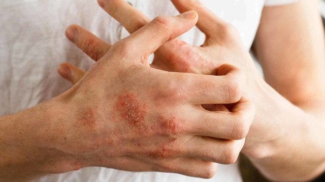 Сколько проходит атопический дерматит у ребенка при отсутствии аллергенов