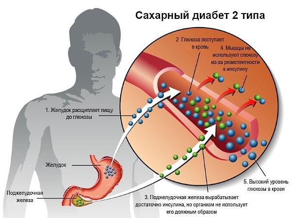 Какие таблетки пить от повышенного давления при сахарном диабете?
