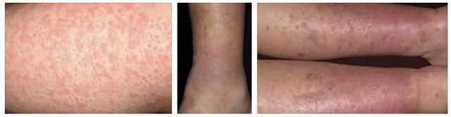 Чем лечить варикозный дерматит нижних конечностей