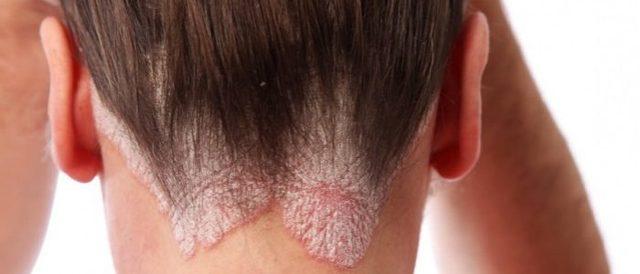 Себорейный дерматит это инфекционное заболевание или нет