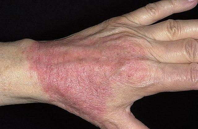 Дерматит на руках заразен или нет