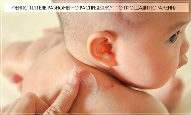 Фенистил гель при атопическом дерматите у грудничка