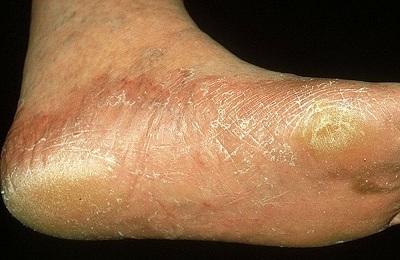 От чего бывает дерматит на ногах