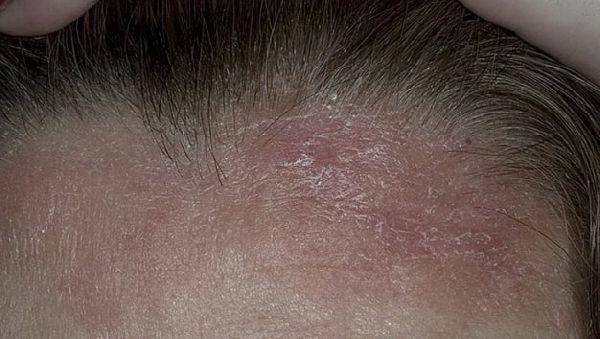Себорейный дерматит на лбу и бровях у грудничка как убрать