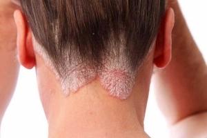 Дерматит на голове лечение в домашних условиях у подростка
