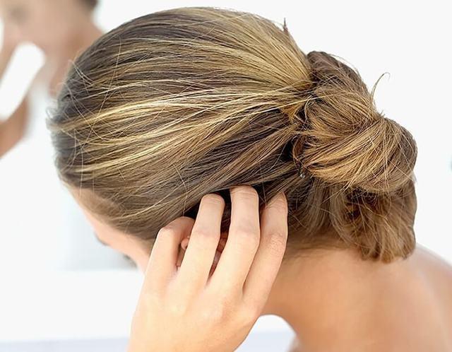 Лечение себорейного дерматита кожи головы в домашних условиях