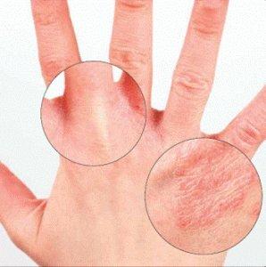 Что за болезнь артифециональный дерматит дермагалы?