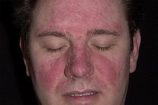 Себорейные формы атопического дерматита и псориаза симптомы