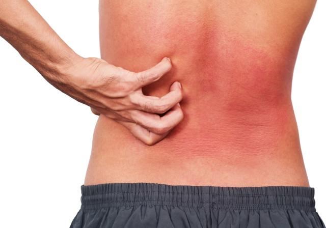 Как комиссоваться из армии с атопическим дерматитом?
