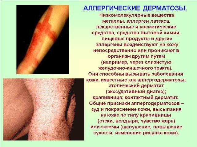 Можно ли ставить пентаксим при дерматите?