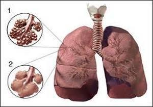 Буллезная эмфизема легких