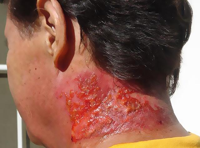 Лучевой дерматит возникает через год после облучения