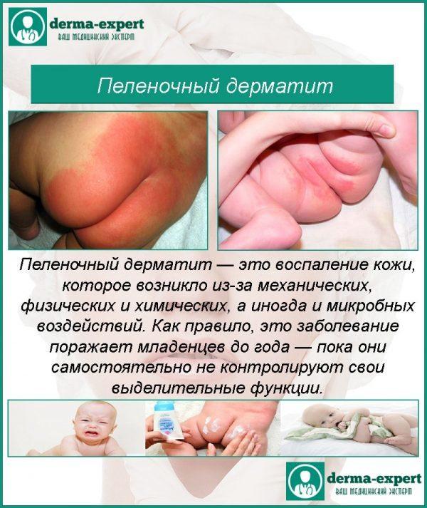 Можно ли купать ребенка в череде при атопическом дерматите?