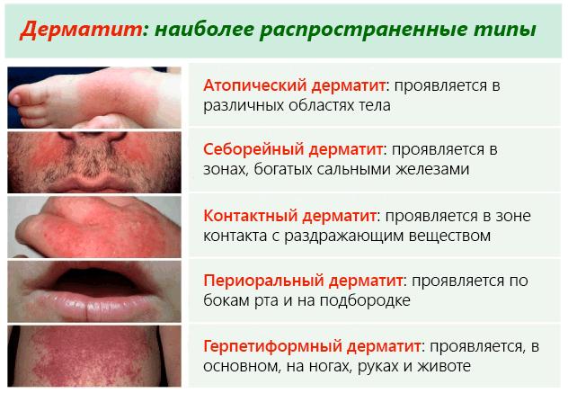 Что такое дерматит как он выглядит и чем лечить?