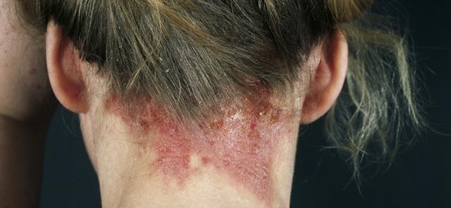 Чем отличается атопический дерматит от нейродермита