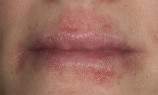 Герпетический везикулярный дерматит описание симптомы и лечение