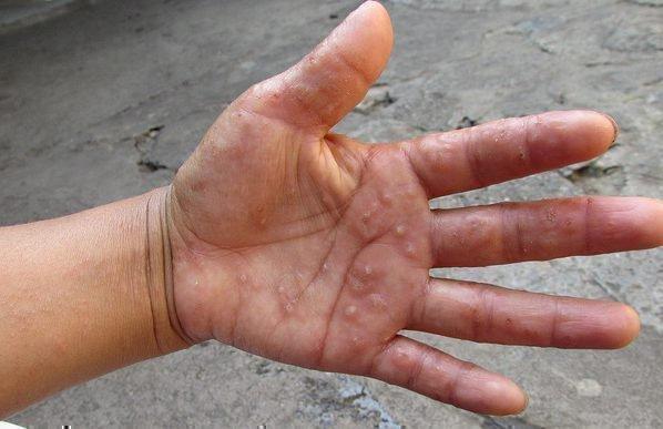 Атопический дерматит у детей заразен или нет